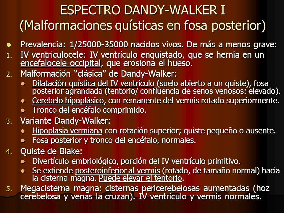 ESPECTRO DANDY-WALKER I (Malformaciones quísticas en fosa posterior)