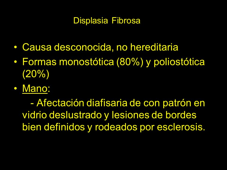 Causa desconocida, no hereditaria