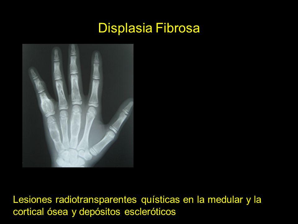 Displasia Fibrosa Lesiones radiotransparentes quísticas en la medular y la cortical ósea y depósitos escleróticos.