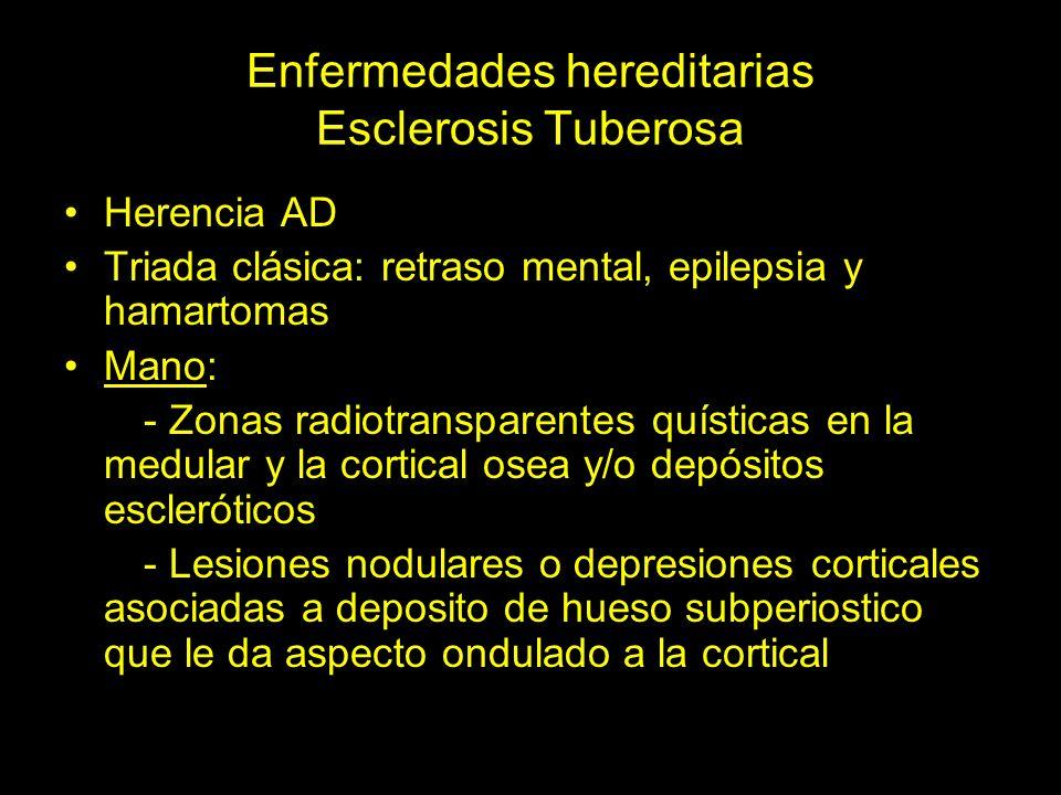 Enfermedades hereditarias Esclerosis Tuberosa