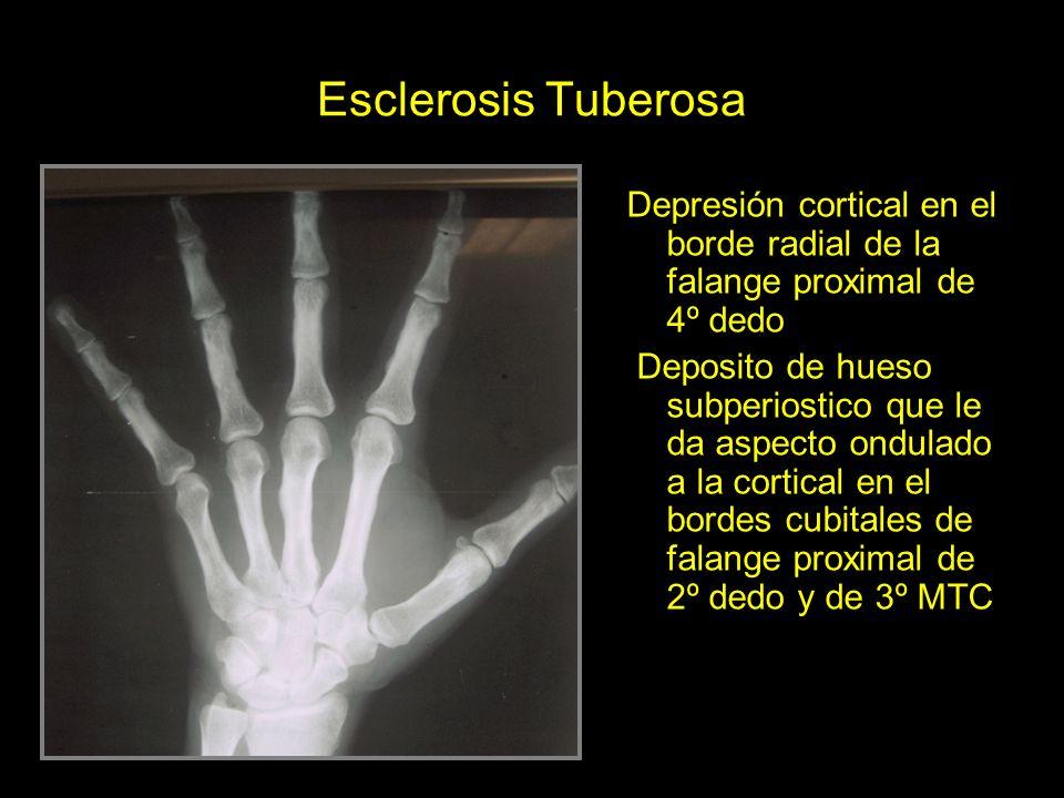 Esclerosis Tuberosa Depresión cortical en el borde radial de la falange proximal de 4º dedo.