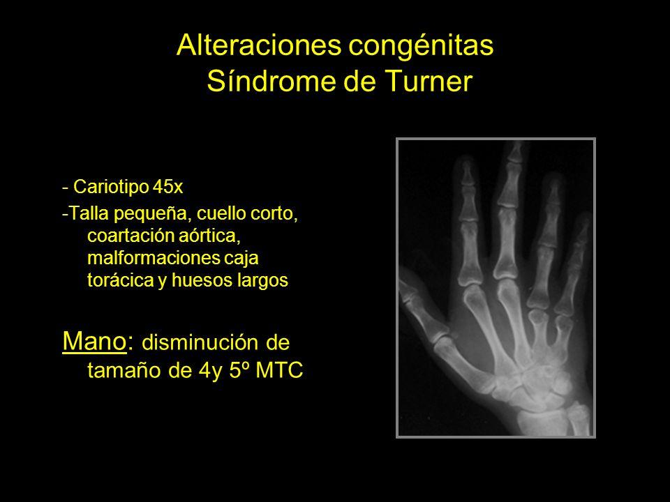 Alteraciones congénitas Síndrome de Turner