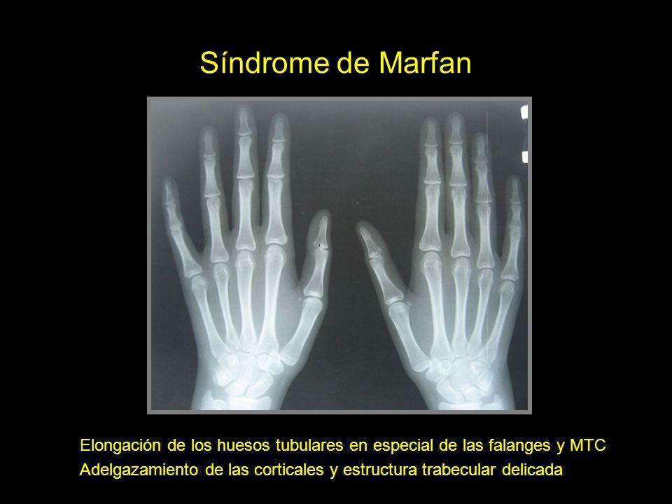 Síndrome de Marfan Elongación de los huesos tubulares en especial de las falanges y MTC.