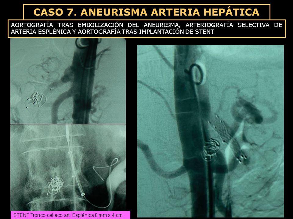 CASO 7. ANEURISMA ARTERIA HEPÁTICA