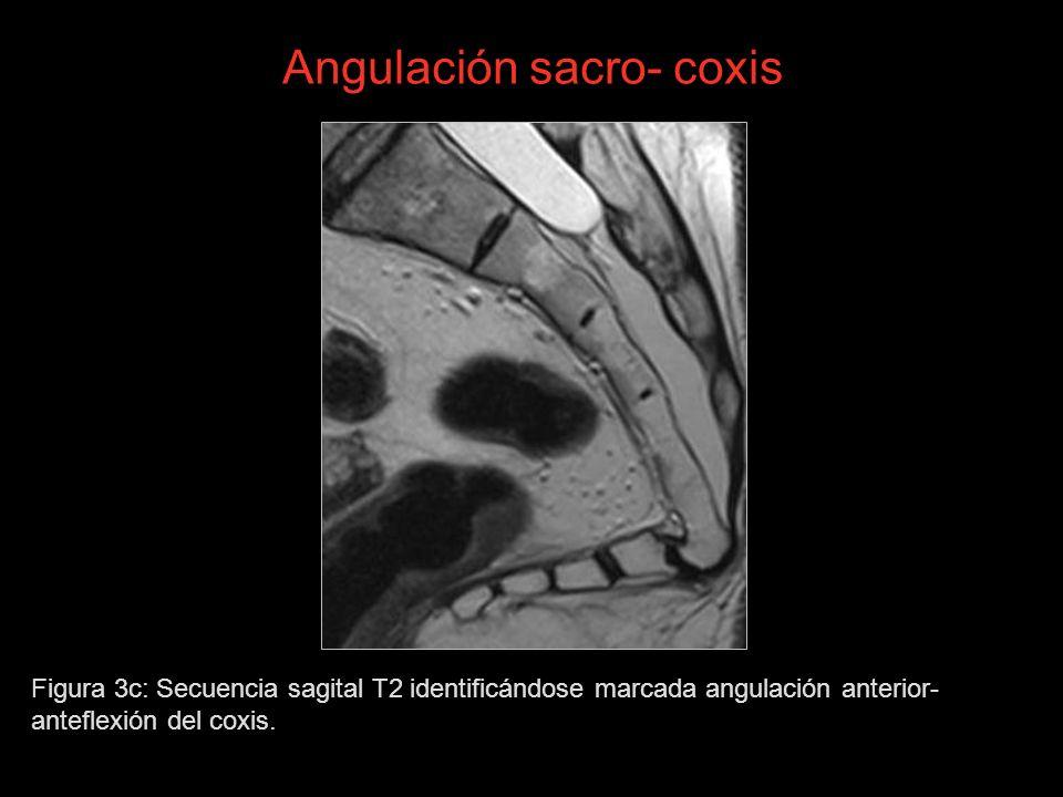 Angulación sacro- coxis