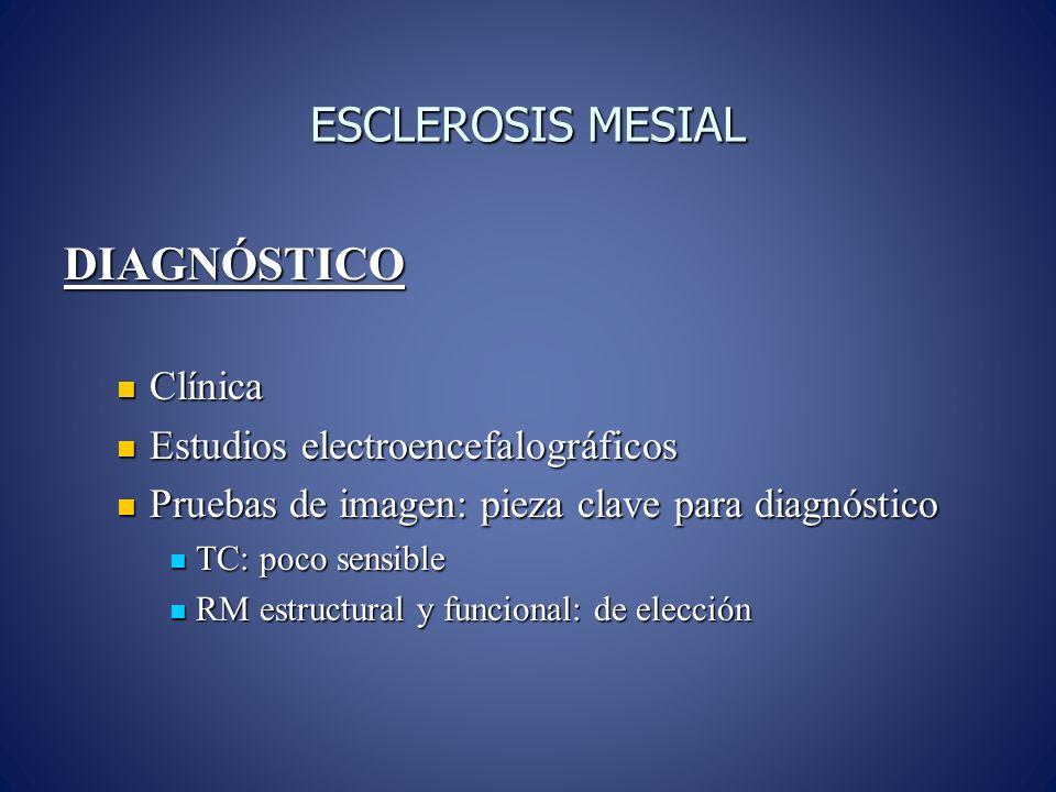 ESCLEROSIS MESIAL DIAGNÓSTICO Clínica Estudios electroencefalográficos