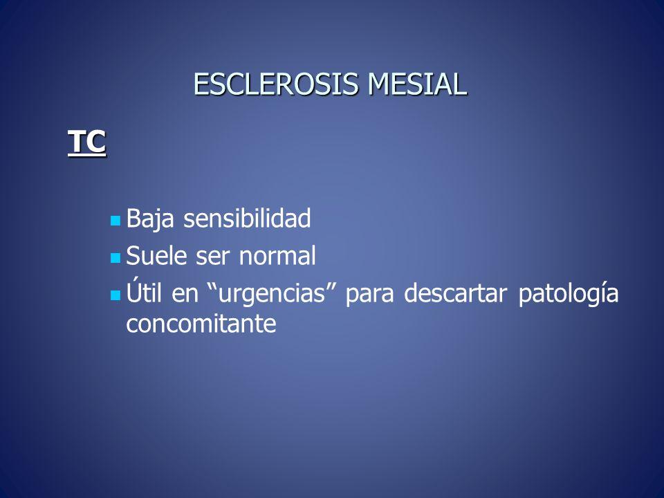 ESCLEROSIS MESIAL TC Baja sensibilidad Suele ser normal