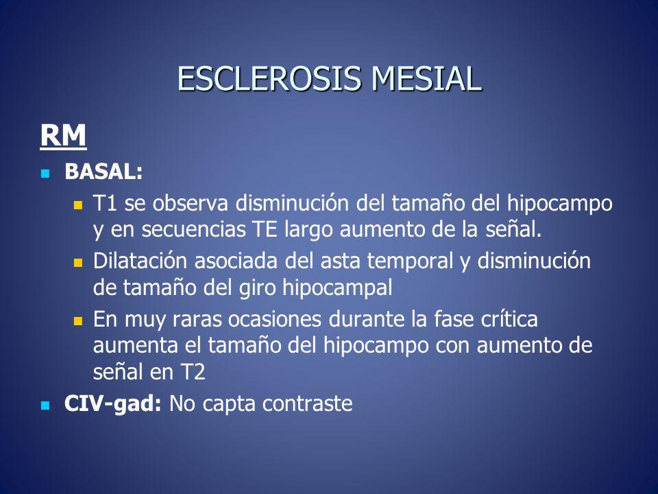 ESCLEROSIS MESIAL RM BASAL: