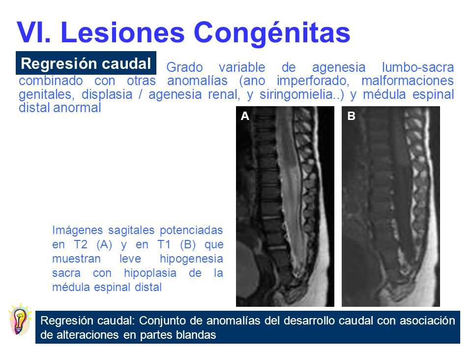 VI. Lesiones Congénitas