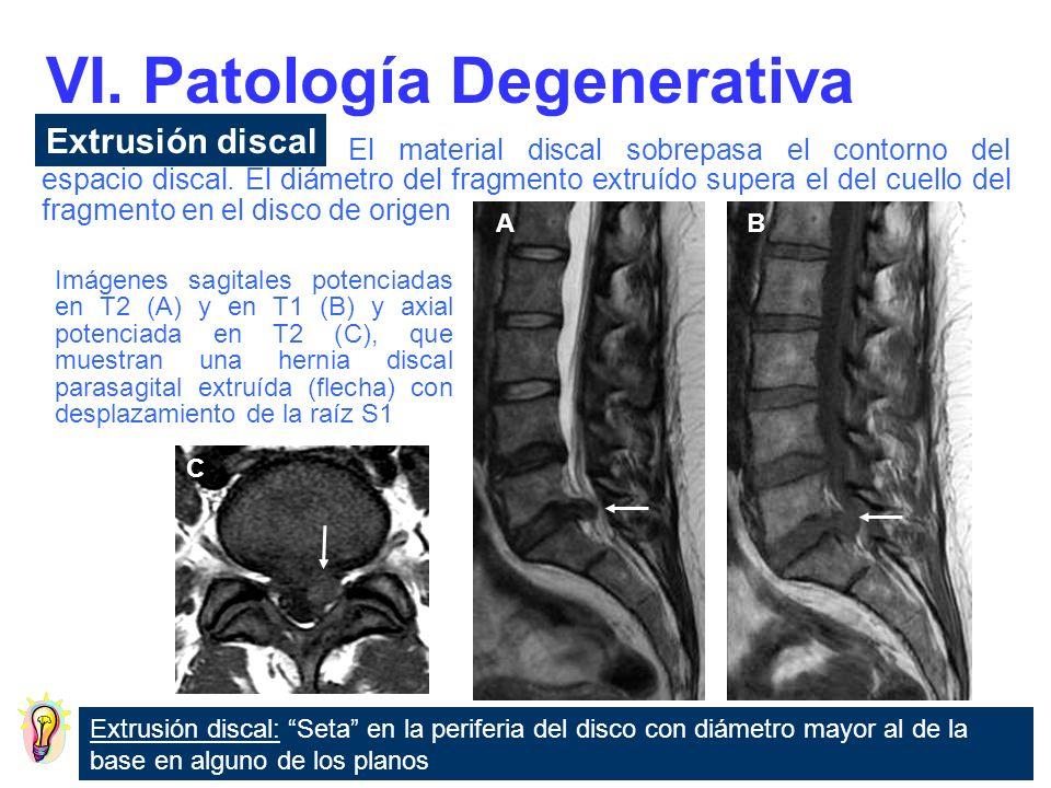 VI. Patología Degenerativa