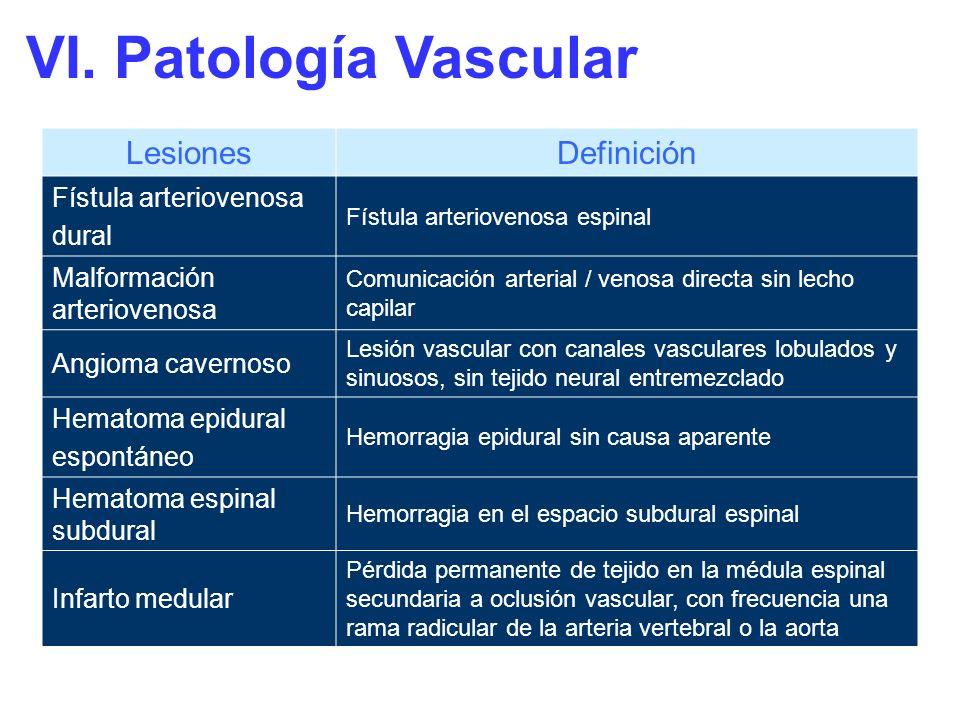 VI. Patología Vascular Lesiones Definición Fístula arteriovenosa dural
