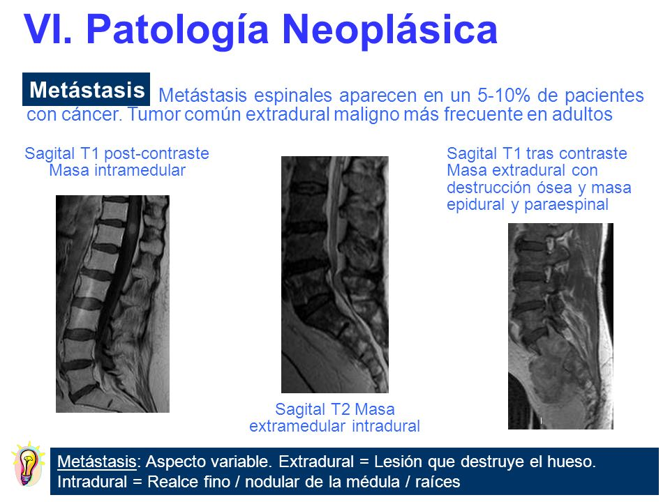 VI. Patología Neoplásica
