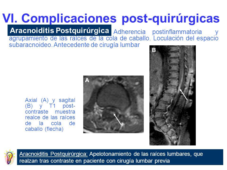 VI. Complicaciones post-quirúrgicas