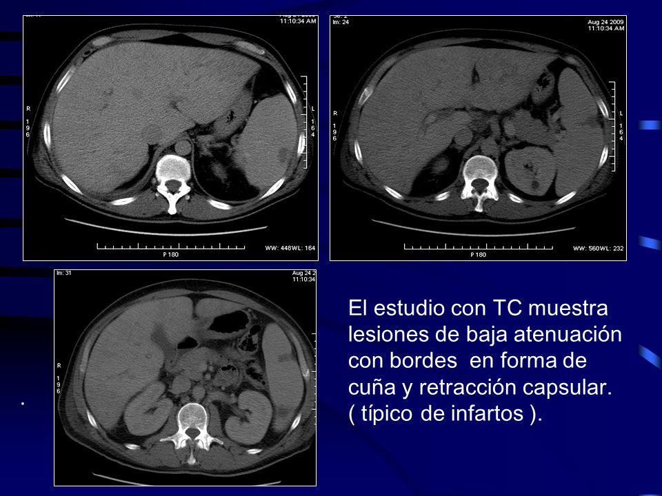 El estudio con TC muestra lesiones de baja atenuación con bordes en forma de cuña y retracción capsular. ( típico de infartos ).