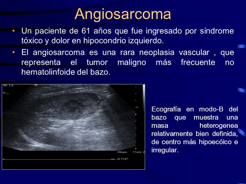Angiosarcoma Un paciente de 61 años que fue ingresado por síndrome tóxico y dolor en hipocondrio izquierdo.