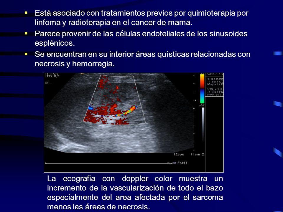 Está asociado con tratamientos previos por quimioterapia por linfoma y radioterapia en el cancer de mama.