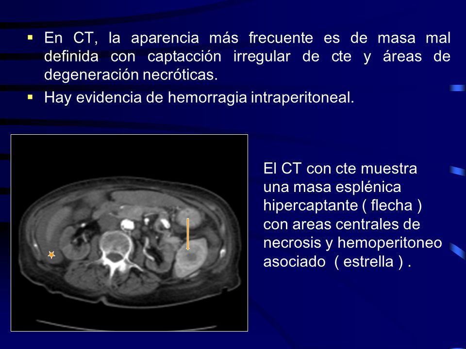 En CT, la aparencia más frecuente es de masa mal definida con captacción irregular de cte y áreas de degeneración necróticas.