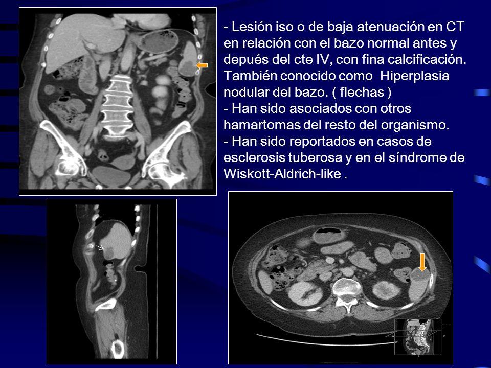 - Lesión iso o de baja atenuación en CT en relación con el bazo normal antes y depués del cte IV, con fina calcificación.