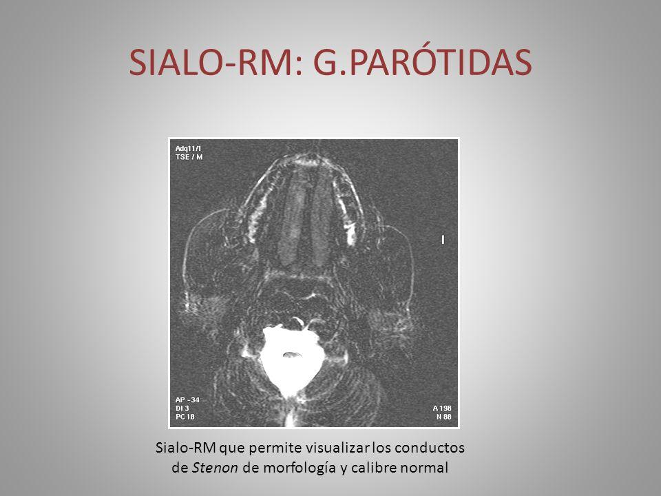 SIALO-RM: G.PARÓTIDASSialo-RM que permite visualizar los conductos de Stenon de morfología y calibre normal.
