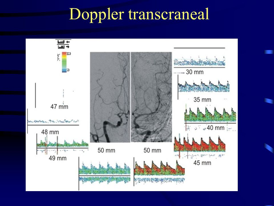 Doppler transcraneal