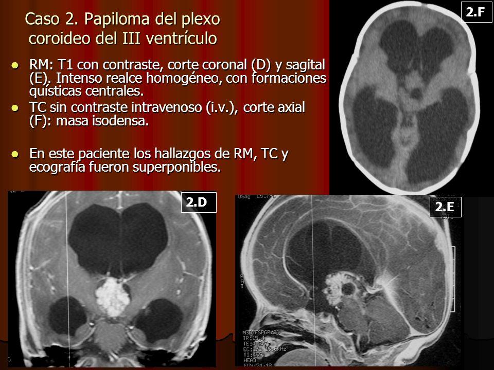 Caso 2. Papiloma del plexo coroideo del III ventrículo