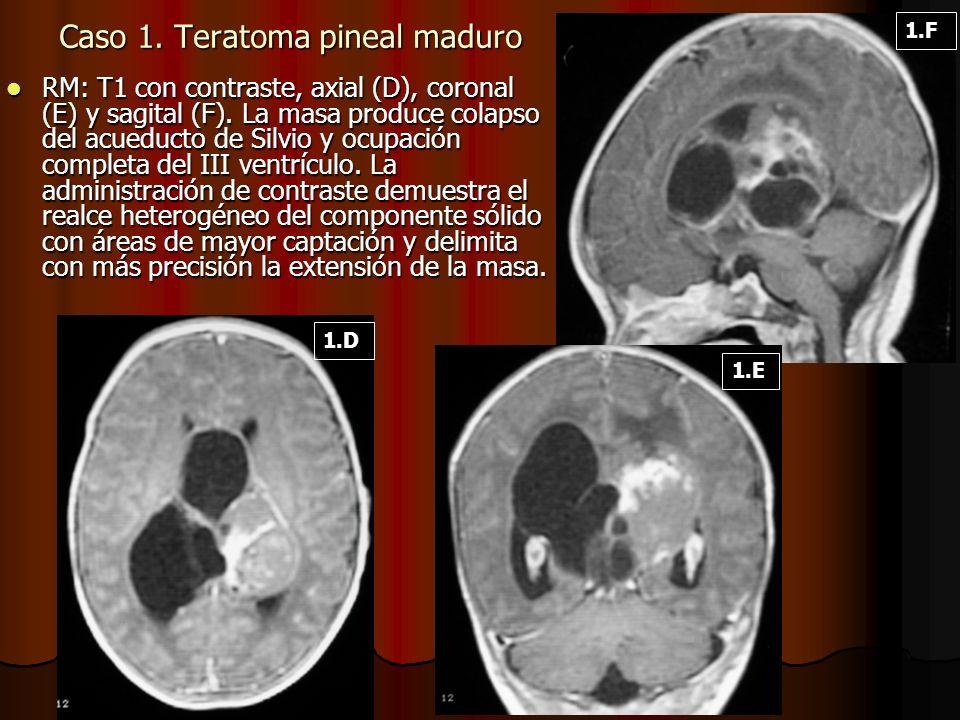 Caso 1. Teratoma pineal maduro