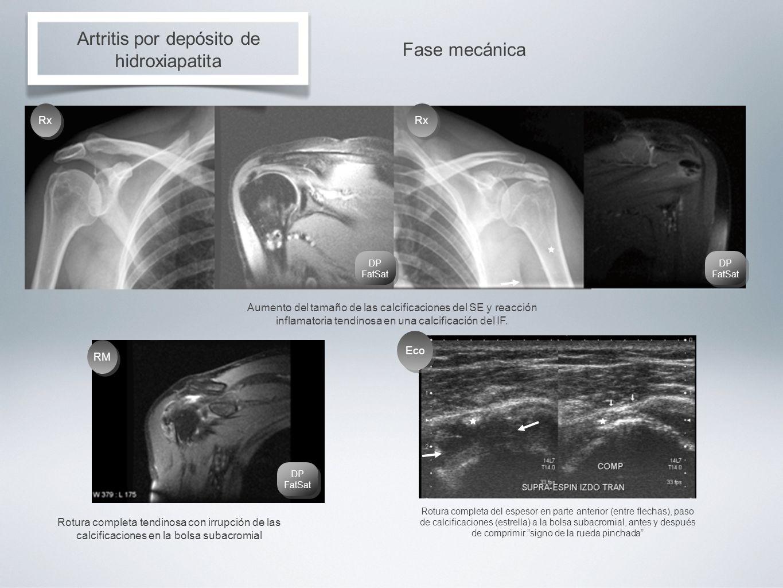 Artritis por depósito de hidroxiapatita