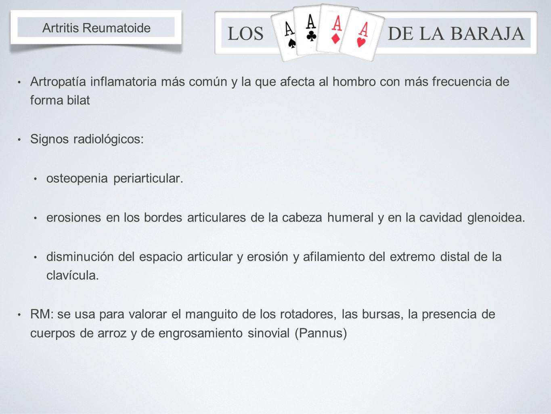 LOS DE LA BARAJA Artritis Reumatoide