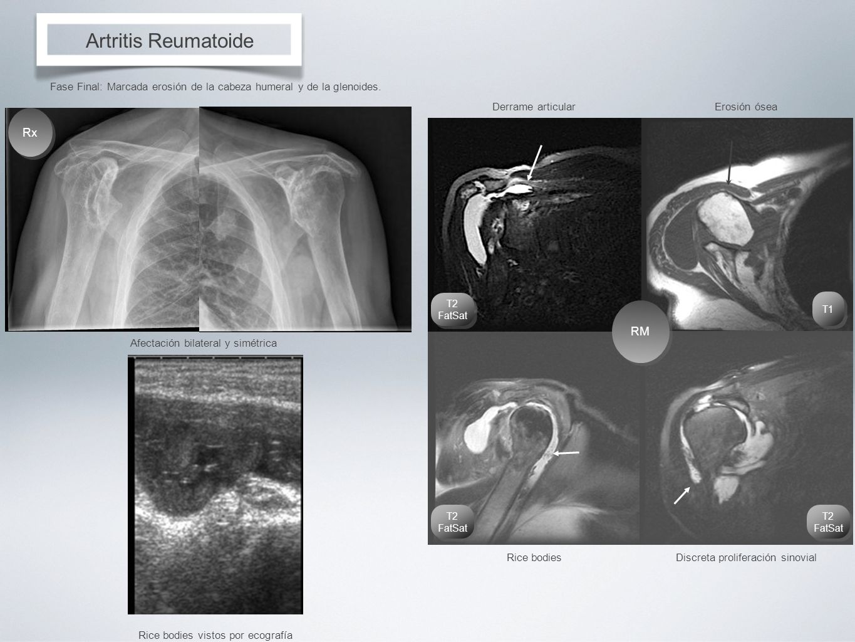 Artritis Reumatoide Rx RM