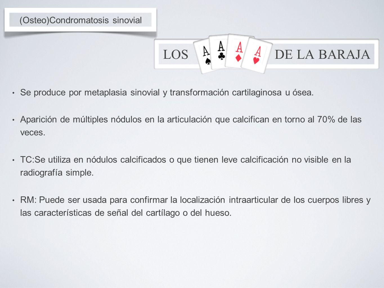 (Osteo)Condromatosis sinovial