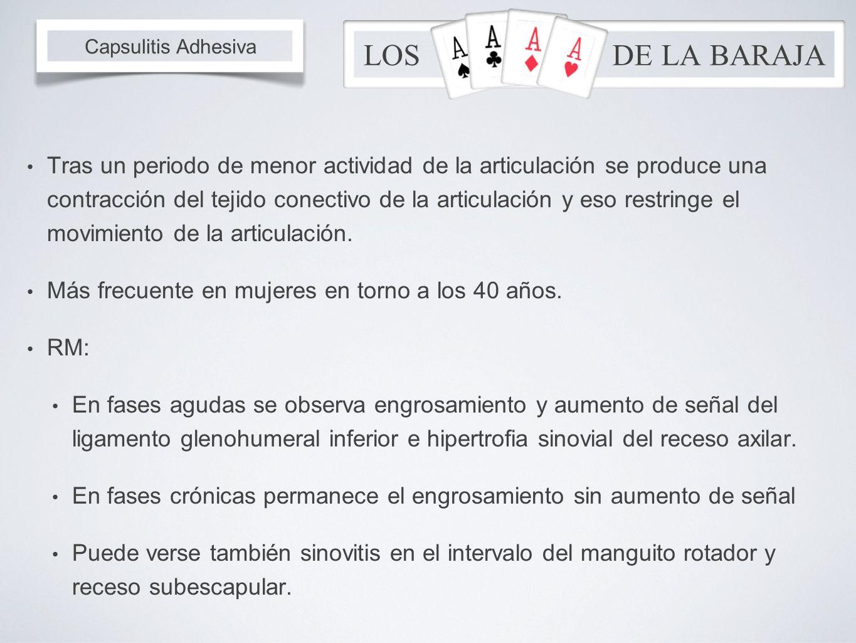 LOS DE LA BARAJA Capsulitis Adhesiva.