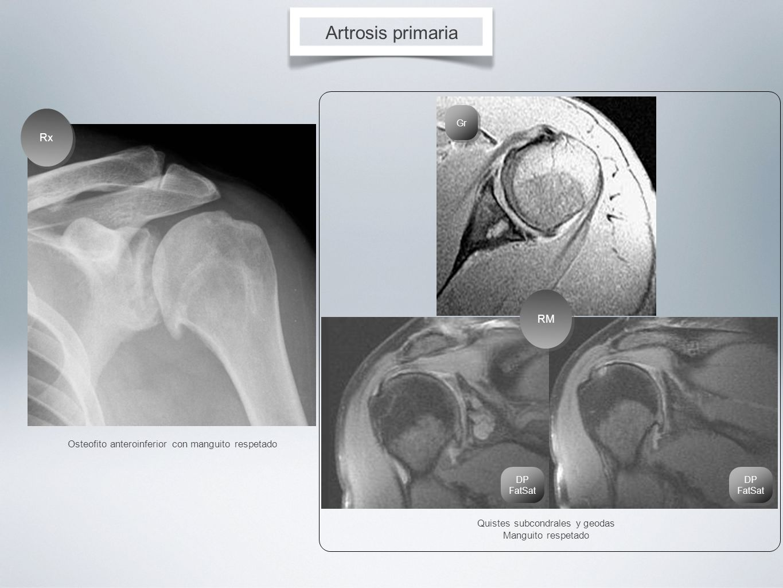 Artrosis primaria Rx RM
