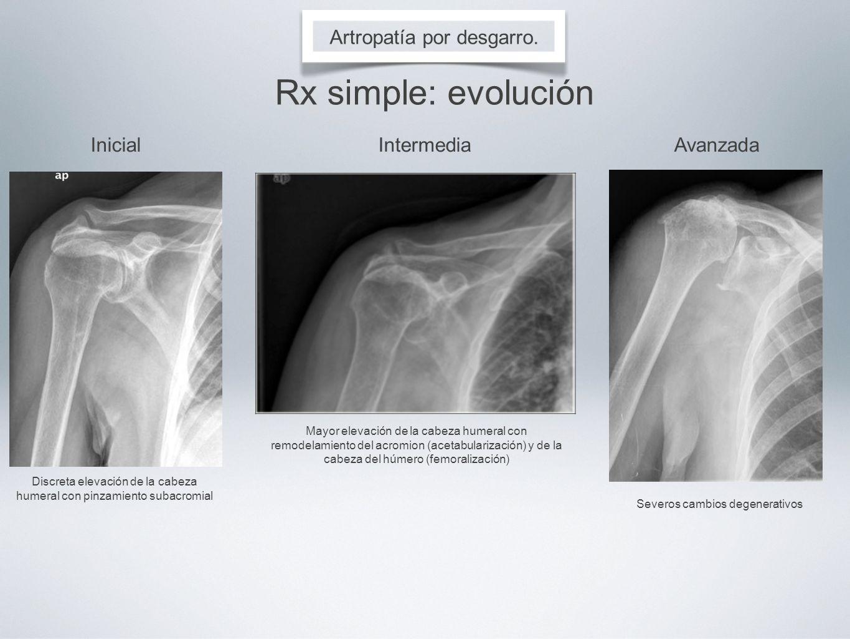 Rx simple: evolución Artropatía por desgarro. Inicial Intermedia