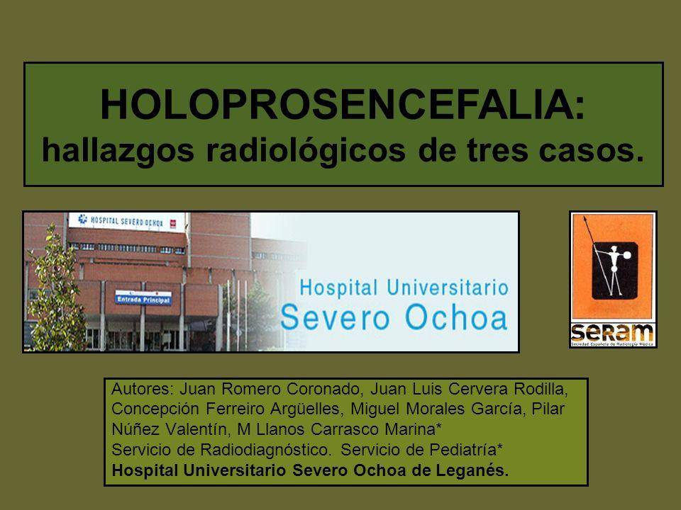 HOLOPROSENCEFALIA: hallazgos radiológicos de tres casos.