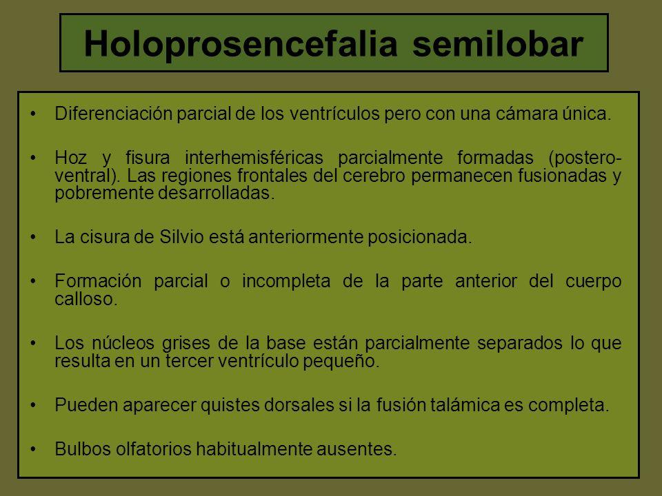 Holoprosencefalia semilobar