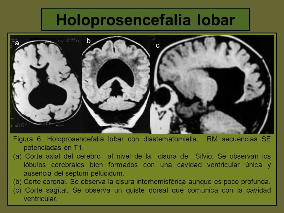 Holoprosencefalia lobar
