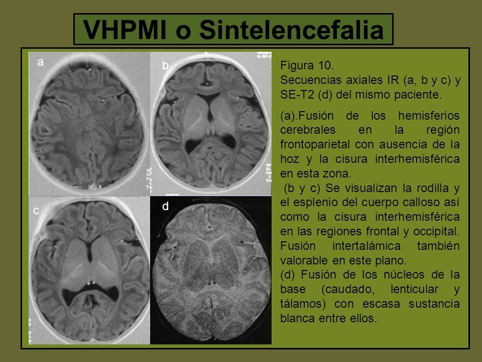 VHPMI o Sintelencefalia