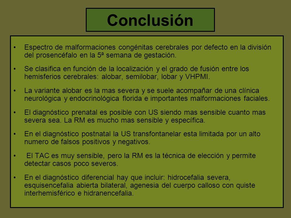 Conclusión Espectro de malformaciones congénitas cerebrales por defecto en la división del prosencéfalo en la 5ª semana de gestación.