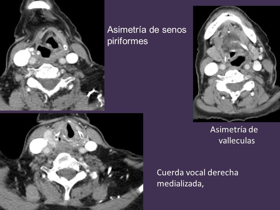 Asimetría de senos piriformes