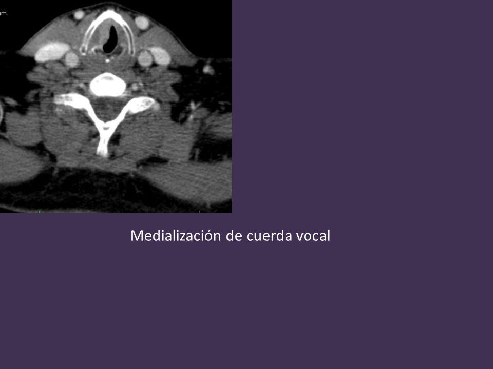 Medialización de cuerda vocal