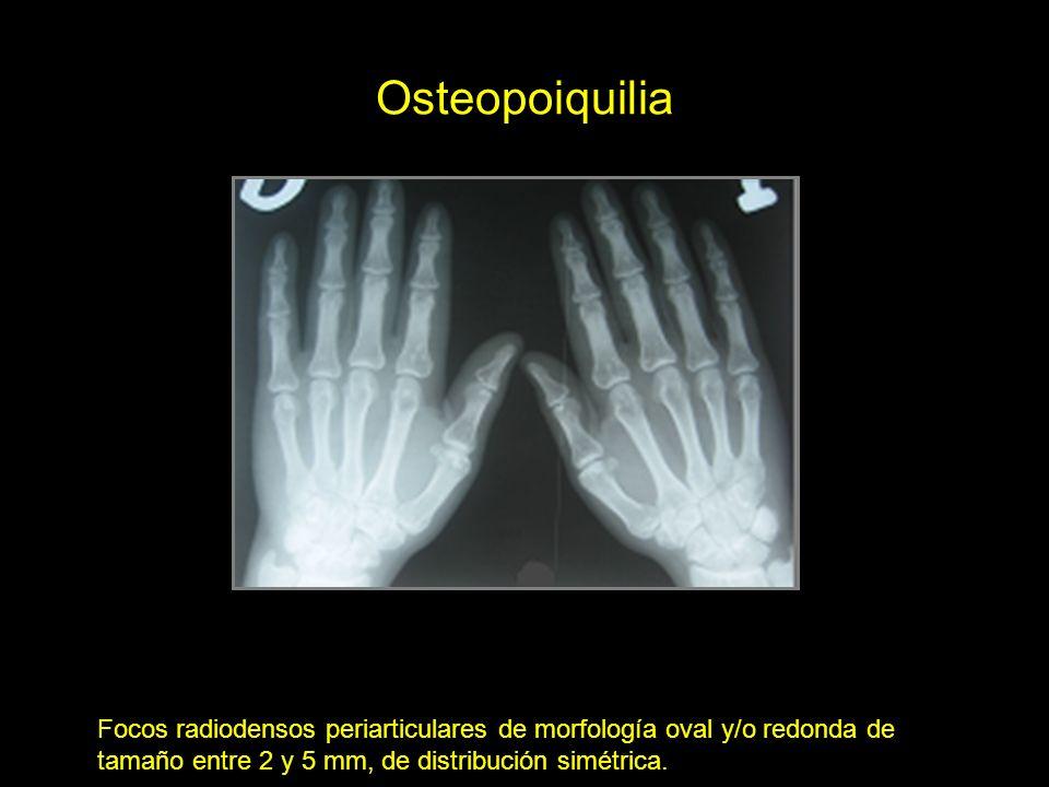 Osteopoiquilia Focos radiodensos periarticulares de morfología oval y/o redonda de tamaño entre 2 y 5 mm, de distribución simétrica.