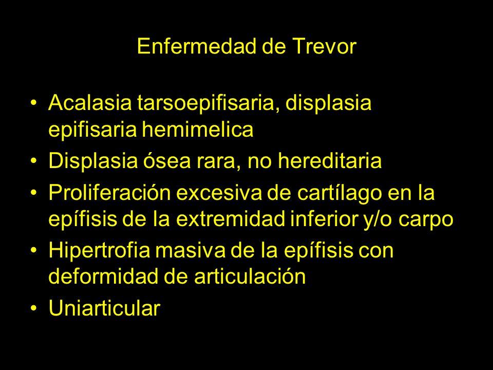 Enfermedad de Trevor Acalasia tarsoepifisaria, displasia epifisaria hemimelica. Displasia ósea rara, no hereditaria.
