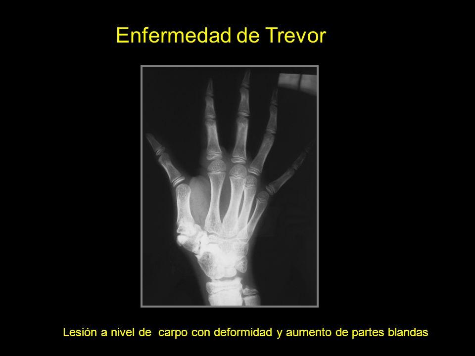 Enfermedad de Trevor Lesión a nivel de carpo con deformidad y aumento de partes blandas