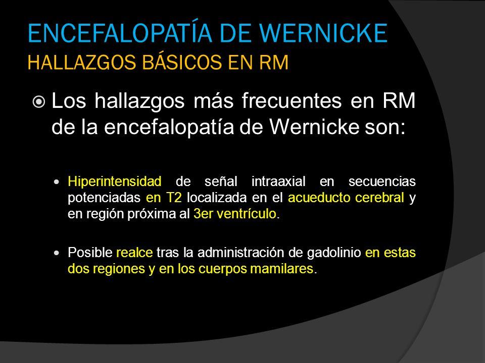 ENCEFALOPATÍA DE WERNICKE HALLAZGOS BÁSICOS EN RM