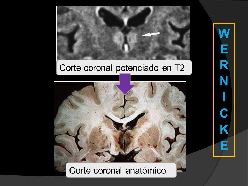 WERNICKE Corte coronal potenciado en T2 Corte coronal anatómico
