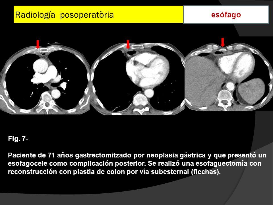 Radiología posoperatòria