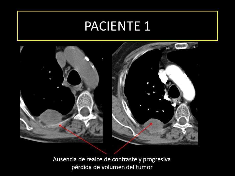 PACIENTE 1 Ausencia de realce de contraste y progresiva pérdida de volumen del tumor