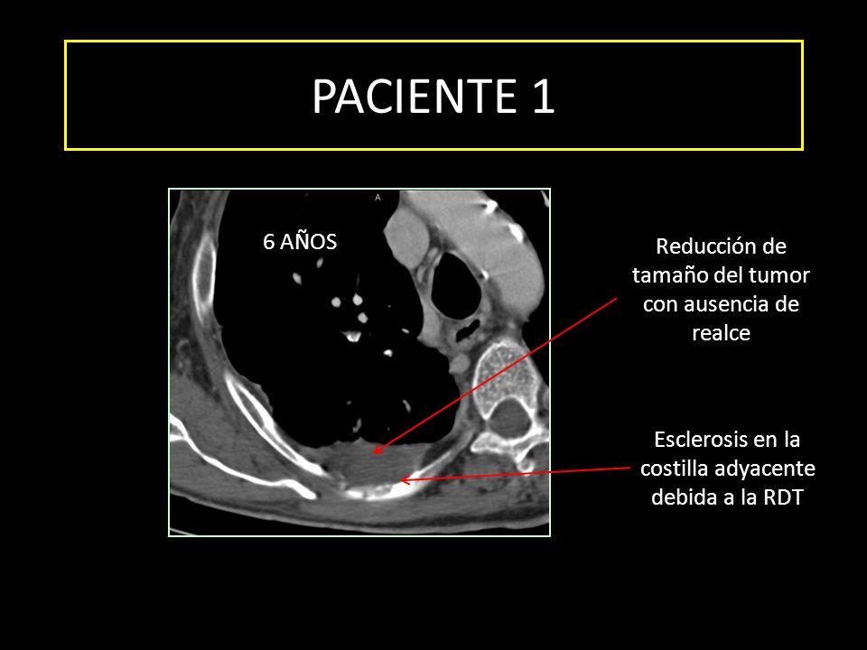 PACIENTE 1 6 AÑOS Reducción de tamaño del tumor con ausencia de realce