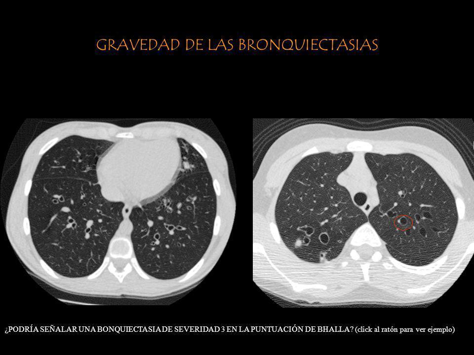 GRAVEDAD DE LAS BRONQUIECTASIAS