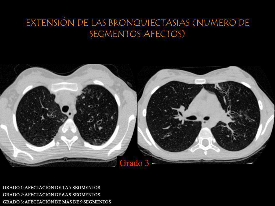 EXTENSIÓN DE LAS BRONQUIECTASIAS (NUMERO DE SEGMENTOS AFECTOS)